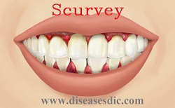 Scurvy Causes Symptoms Complications And Preventions