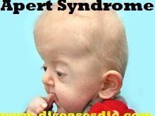 Facial deformity syndrome