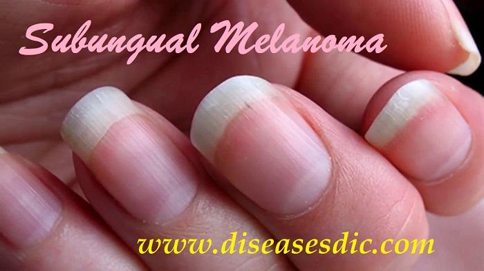 Subungual Melanoma Description Treatment And Prevention