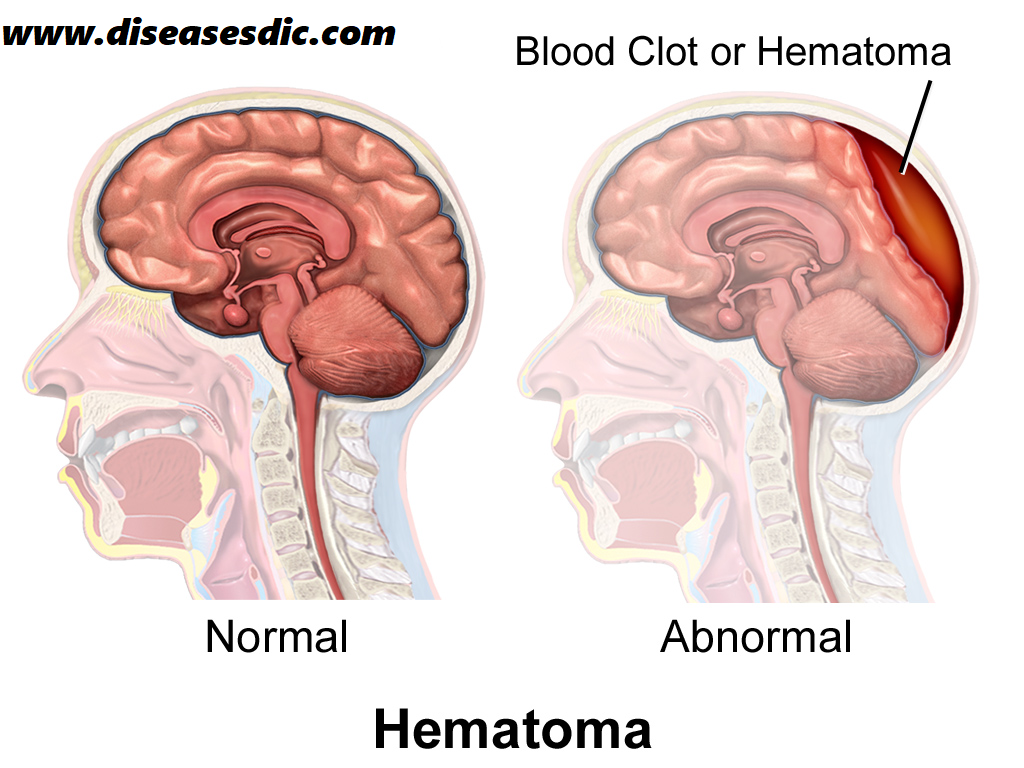 Subdural Hematoma – Description, Causes, and Treatment  -
