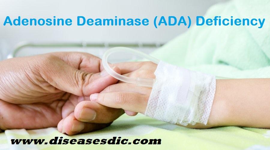Alopecia Areata- Definition, Diagnosis and Treatment  -