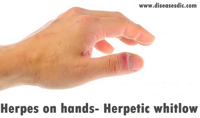 Herpetic Whitlow - Overview, Risk factors, and Diagnosis  -