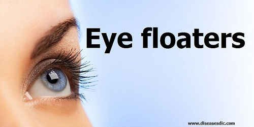 Eye Floaters - Types, Causes, and Treatment -