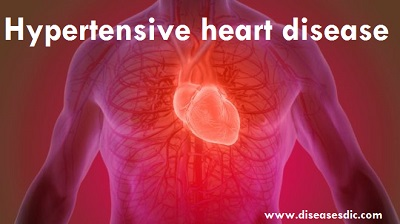Heart diseases Archives - Diseases Treatments Dictionary - Diseasesdic.com