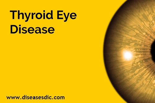 Thyroid Eye Disease (TED)-Definition, Symptoms and Treatment -
