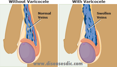 Varicocele Types Causes And Natural Remedies